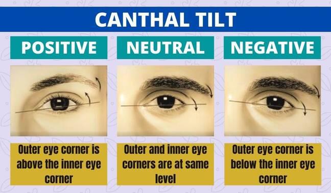 Positive Vs Neutral vs Negative Canthal Tilt